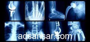 Best Orthopaedic Surgeon in Faridabad