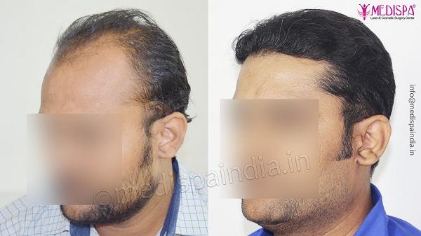 Top Hair Transplant Clinic