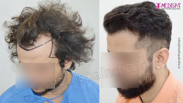hair transplant surgery in Jaipur