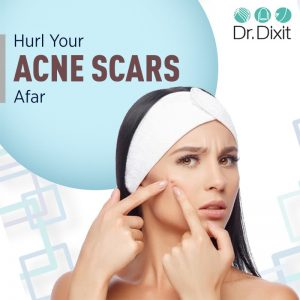 Acne scars reduction in Bangalore