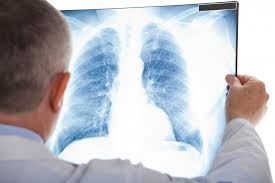 Cancer Testing Screening Market
