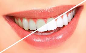 Dental Whitening Lamps Market