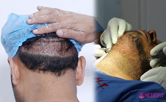 Beard and Moustache Hair Transplant