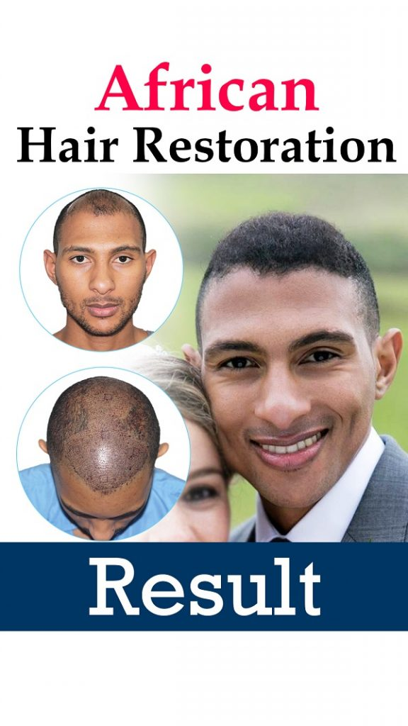 Curly Hair Transplant Results