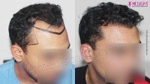 Hair Transplant in Mumbai