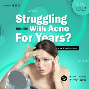 Acne Scar Reduction in Bangalore