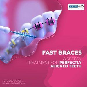 best dental clinic in kochi1