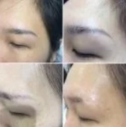 Cosmetic Tattoo Removal Melbourne