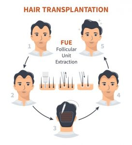 top-5-fue-hair-transplant-techniques-which-will-make-you-younger/